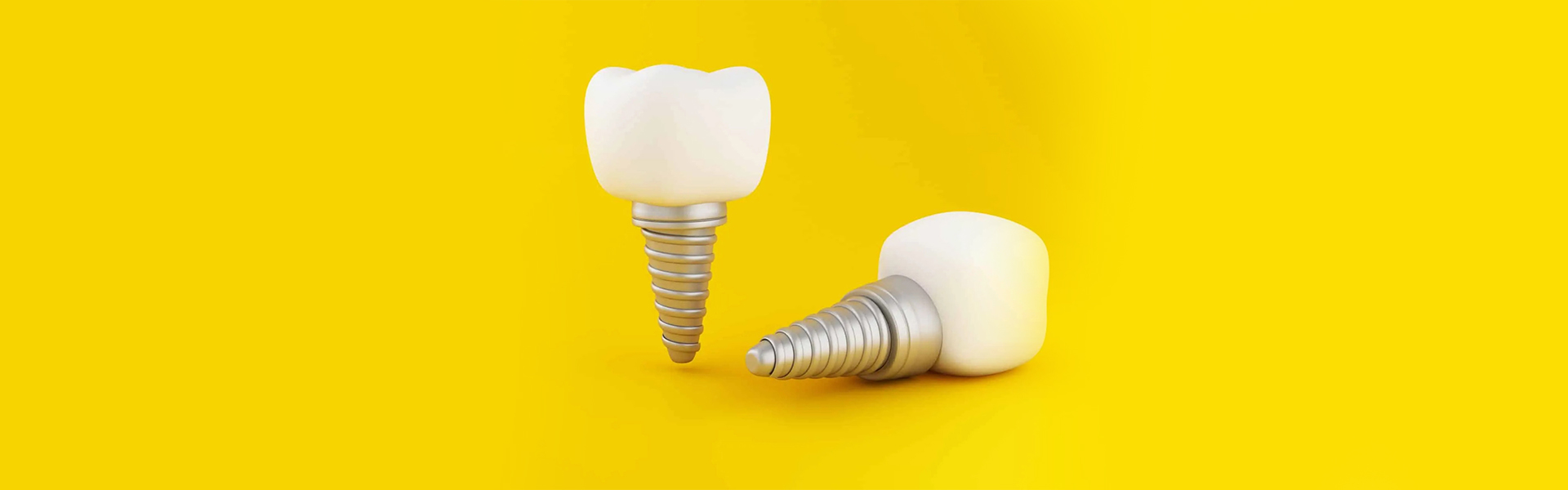 Dental Implants: What are they? Types, fixing, benefits, and risks